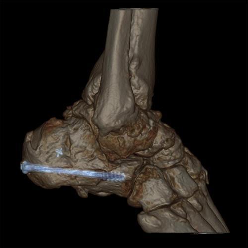 Pięta wzmocniona po złamaniu śrubą. Fot. GE Healthcare