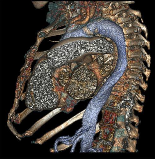 Klatka piersiowa z widocznym wnętrzem serca. Fot. GE Healthcare