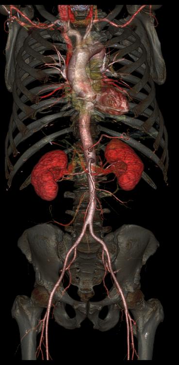 Aorta i nerki. Fot. GE Healthcare