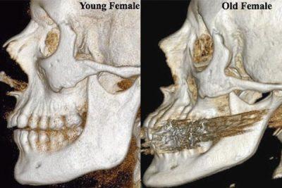 Obrazy wykonane techniką tomografii komputerowej, pokazujące czaszkę kobiety w wieku 20-40 lat (z lewej) oraz kobiety w wieku 65 lat (z prawej). Fot. Howard Langstein/University of Rochester Medical Center