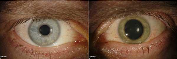Oko Iana Coziera. Zielone zabarwienie powstało w wyniku infekcji wirusem Ebola Fot. Emory Eye Center