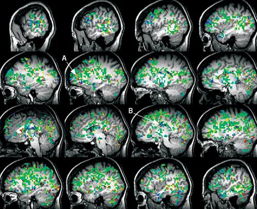 Tak wygląda orgazm w mózgu. Fot. Barry Komisaruk