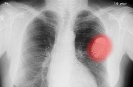 Czy haker może złamać ci serce? Medycyna i bezpieczeństwo