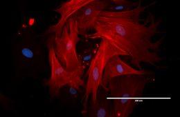Polacy tworzą leki na bazie wyjątkowych komórek macierzystych z… poroża jelenia