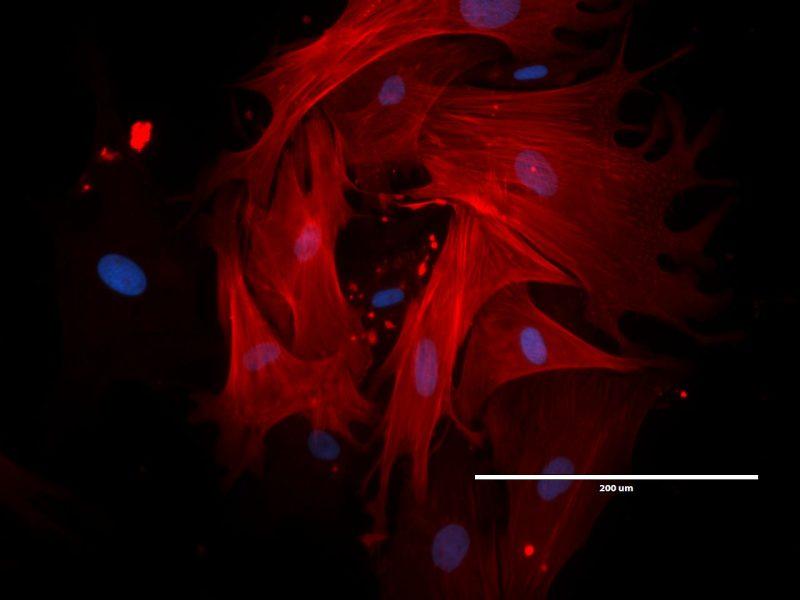 Komórki macierzyste z poroża jelenia pod mikroskopem. Źródło: Biocervin