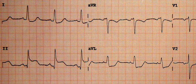 Obraz zawału na EKG Fot. James Heilman, MD