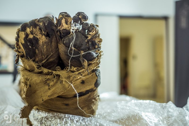 Stopy mumii. Fot. dr Łukasz Kownacki (Affidea), Aleksander Leydo