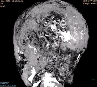 Skany ujawniły długie, kręcone włosy u mumii. Fot. dr Łukasz Kownacki (Affidea), Aleksander Leydo