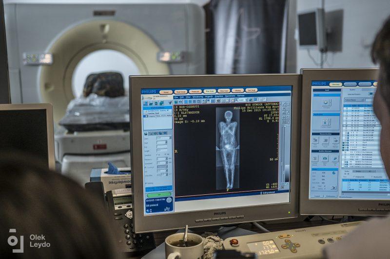 Badania mumii domniemanego kapłana Hor-Dżehuti. Fot. dr Łukasz Kownacki (Affidea), Aleksander Leydo