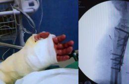 Polacy przeszczepili dłoń człowiekowi, który urodził się bez niej. To pierwszy taki zabieg na świecie