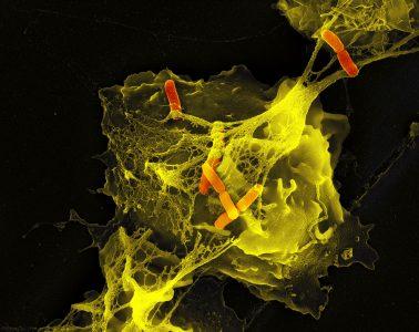Batkerie z rodzaju Shigella uwięzione w sieci wytworzonej przez neutrofile. Fot. Max Planck Institute for Infection Biology