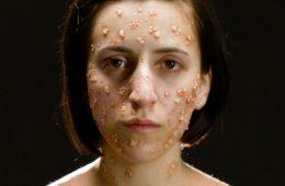 Jak choroby zakaźne zmieniają wygląd człowieka? Zobaczcie to na filmie