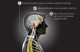 Armia USA chce stymulować mózgi żołnierzy prądem, by się lepiej uczyli
