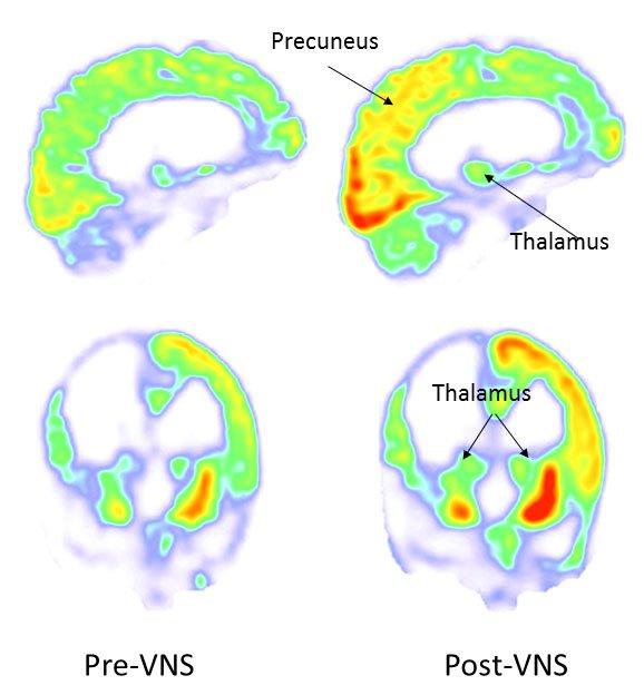 Wyniki skanowania PET mózgu pacjenta. Po lewej stan przed stymulacją, po prawej - w 3 miesiące po rozpoczęciu stymulacji. Fot. Corazzol and Lio et al., Current Biology (2017)