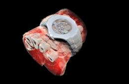 Pierwsze kolorowe zdjęcia RTG zrobione dzięki technologii ze Zderzacza Hadronów