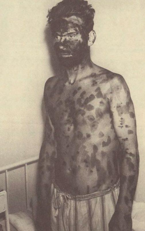 Chory z wysypką ospową pokrytą środkiem odkażającym. źródło: źródło: Grażyna Trzaskowska: Epidemia czernej ospy we Wrocławiu w 1963 roku.